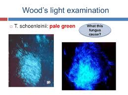 Woods Lamp Examination Images by Diagnosis Of Cutaneous Fungal Infections