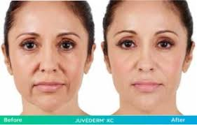 Pumpkin Enzyme Peel Before And After by Cosmetic Dermatology Gold Coast Dermatology Delray Beach Fl