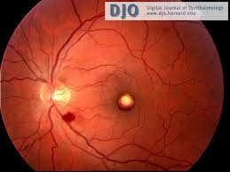 Left Eye Fundus Photograph Demonstrating Organizing Foveal Pre Retinal Hemorrhage And A Nerve Fiber Layer In The Inferior Arcade