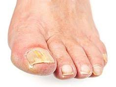 Toenail Separated From Nail Bed by Http Www Yellowtoenailscured Com Nail Separation From Nail Bed