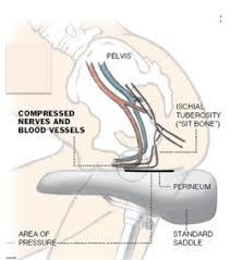Pelvic Floor Dysfunction Symptoms Constipation by 17 Pelvic Floor Dysfunction Symptoms Constipation Bowel