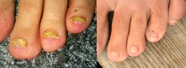 Receding Nail Bed by 100 Bruised Nail Bed Doctors Warn Of Potentiall Deadly Form