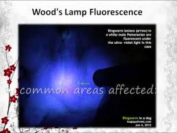 Woods Lamp Examination Images by Diagnosis Of Ringworm Using Uv Light Youtube