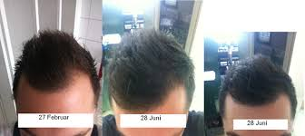 Minoxidil Shedding Phase Pictures by Propecia With Minoxidil Together If I Miss A Synthroid Dose