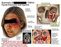 Orbital Floor Fracture Treatment by Amicus Injuries Fractures Serosanguinous Fluid Nostrl