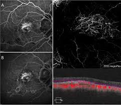 Optical Coherence Tomography Angiography Of Myopic Choroidal