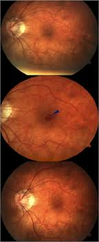 Composite Of Fundus Photographs Showing The Preoperative State Top Immediately Following Phakic Intraocular