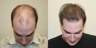 Propecia Shedding After 1 Year by 1 Hair Transplant 10 Years Younger Dr Brett Bolton Reviews