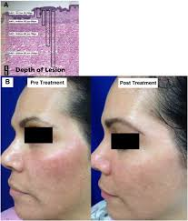 Woods Lamp Examination Melasma by A Review Of Laser And Light Therapy In Melasma Sciencedirect