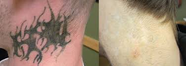 Neck Tattoo Removal Before And After Black Tribal Covering Initials Underneath Partial Being