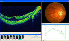 Myopic Degeneration B Scan
