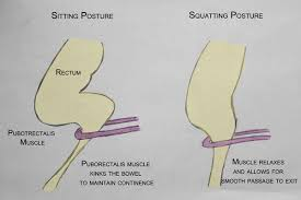 Pelvic Floor Dysfunction Symptoms Constipation by Pelvic Health And Alignment Constipation More Than Just A Pain