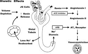 High Ceiling Diuretics Can Cause by Diuretic Drug Causes Symptoms Treatment Diuretic Drug