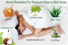 5 best home remedies for pressure sores bed sores or pressure ulcers
