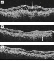 Choroidal Neovascularization CNV Associated With Angioid Streaks Shown By Optical Coherence Tomography OCT A In The Left Eye Extrafoveal