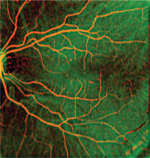 Angiographic OCT Fundus Image Of Human Retina Obtained By Swept Source Optical Coherence Tomography