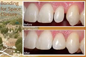 San Diego Dental Bonding