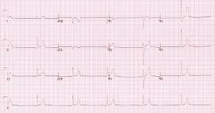 ECG changes in hypothermia LITFL ECG Library