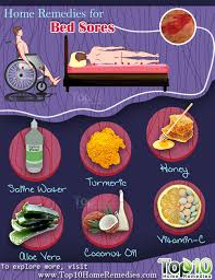 home remedies for bed sores top 10 home remedies