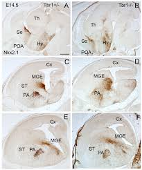 Bed Nucleus Of The Stria Terminalis by Pallial Origin Of Basal Forebrain Cholinergic Neurons In The