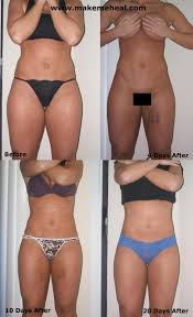Jessica s Experience with Tumescent Liposuction Makemeheal