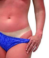how to heal tanning bed burn in 6 easy to comprehend with tips