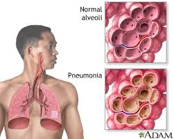 Pneumonia adults munity acquired MedlinePlus Medical