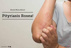 Pityriasis Rosea Christmas Tree by Tips U0026 Advice For Pityriasis Rosea From Top Doctors Lybrate