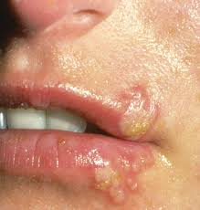 Viral Shedding Herpes Zoster by Blisters On The Lip And In The Mouth The Clinical Advisor