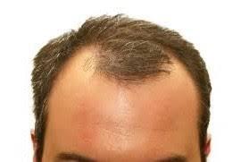 Cara Menumbuhkan Rambut Di Jidat Botak Bagian Depan