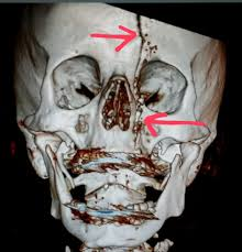 Orbital Floor Fracture Radiology by Face Ct Scan Shows A Linear Fracture From A Circular Saw
