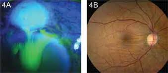 Hypotony Due To A Wound Leak 4A Seidel Positive Following Glaucoma Filtering Surgery 4B Horizontal Chorioretinal Folds In The Macula