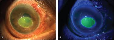 Woods Lamp Examination Images by Evaluation And Management Of Corneal Abrasions American Family