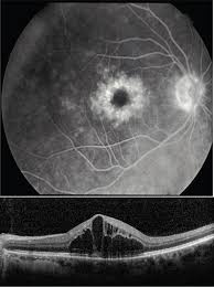 Best Corrected Visual Acuity BCVA Is 20 60 Her Fluorescein Angiogram And OCT Are Provided In Figure 12 3