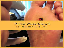 Plantar wart removal stages – How to rid of warts fast with