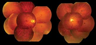 Lacquer Cracks Observed In Peripheral Fundus Of Eyes With High Myopia