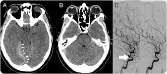 Mystery Case Terson Syndrome On CT Head