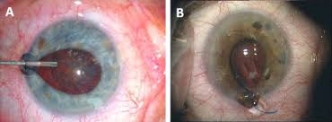 Iris Prolapse Commonly Occurs During Hydrodissection A But Can Also Occur