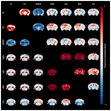 Wholebrain Exvivo Quantitative MRI Of The Cuprizone Mouse Model