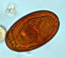 Egg Of Dicrocoelium Sp