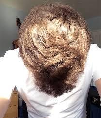 propecia hairline shedding lasix fiale controindicazioni