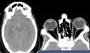 Terson Syndrome Intraretinal Hemorhage With Subarachnoid Haemorhage