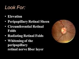 Look For Elevation Peripapillary Retinal Sheen