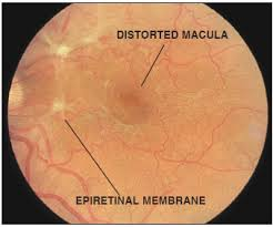 Membrane Epiretinal Causes Symptoms Treatment