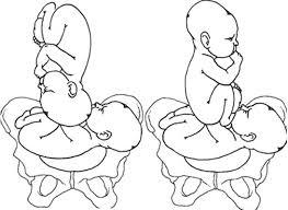 accouchement par le siege ico 4 accouchement gémellaire