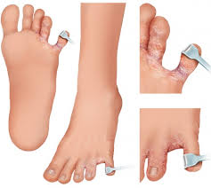 Athlete s Foot & 12 Home Reme s My Health Maven