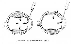 Drainage Of Suprachoroidal Space After The Poster
