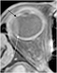 Axial T1W Post Gadolinium Image From Orbital MRI Study For Right Sided Visual Loss Choroidal Detachment Is Seen Limited Posteriorly At Expected