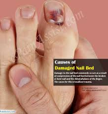what is a nail bed causes treatments of damaged nail bed
