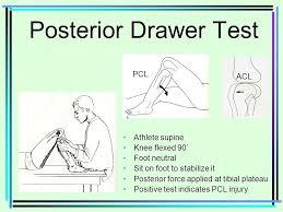 Knee Boney Anatomy Femur Medial condyle & epicondyle ppt video